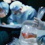 دیدگاه هومیوپاتی در مورد پیوند اعضاء