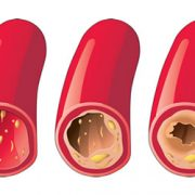 درمان انسداد عروق کرونر