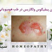 درمان پمفيگوس ولگاريس در طب هومیوپاتی