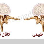 بهترین روش درمان تنگی کانال نخاعی