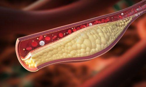 چه عواملى باعث زیاد شدن كلسترول خون میشوند