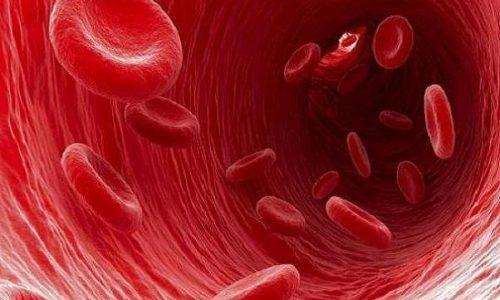 انواع کم خونی و درمان مناسب آن