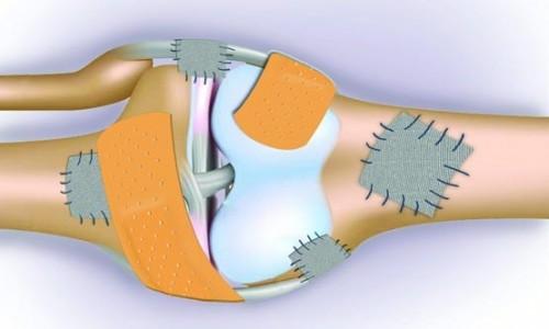 پوکی استخوان و هومیوپاتی