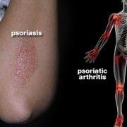 التهاب مفاصل در بیماری پسوریازیس