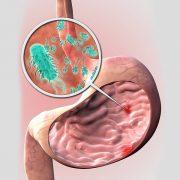نقش تغذیه مناسب در بهبود زخم معده