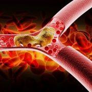 كلسترول و تری گلیسیرید ،دو چربی خون معروف بدن