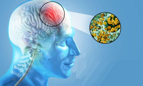 پیشگیری و درمان مننژیت
