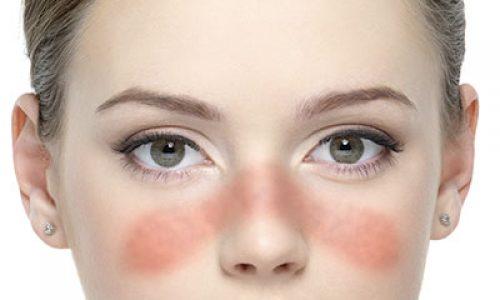 آیا درمانی برای بیماری لوپوس وجود دارد؟