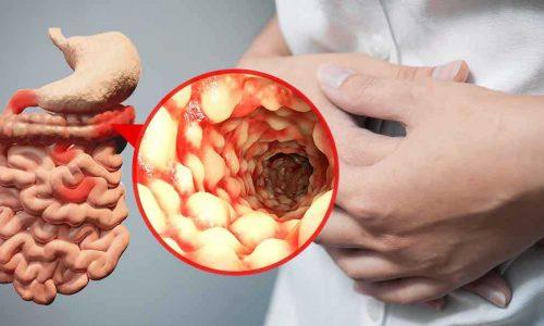 بیماری کرون روده ، علت و علایم