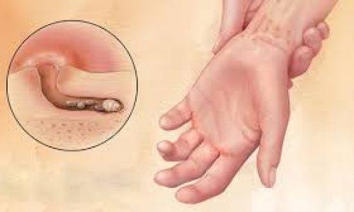 بیماری گال چیست و چگونه درمان می شود