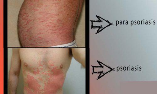 پاراپسوریازیس