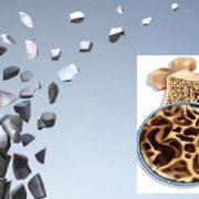 علایم پوکی استخوان و درمان آن