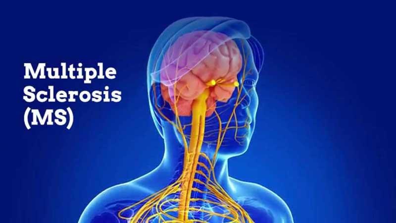 اشکال بیماری ام اس و فاکتورهای موثر در آن