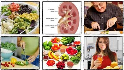 رژیم غذایی در بیماران مبتلا به سنگ کلیه